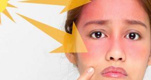 روش های مقابله با آفتاب سوختگی