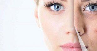 چند دلیل ایجاد جوش بر روی صورت