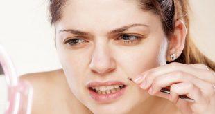 پر مویی و راه درمان