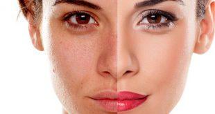 روشن کردن پوست صورت با روش خانگی