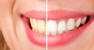 علت زرد شدن دندان و راه درمان